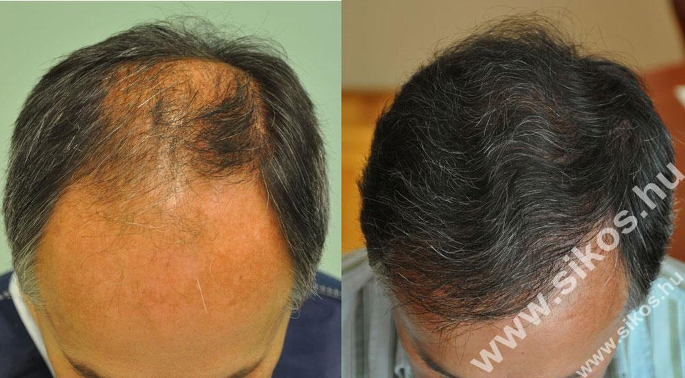 FUE hair transplant 5074 grafts