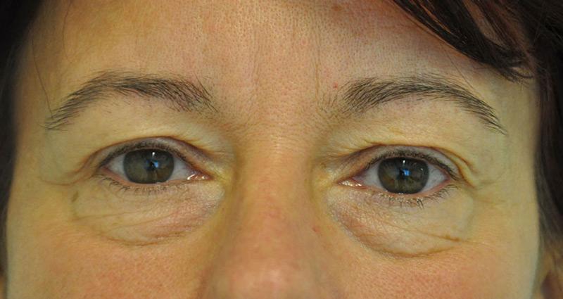 hogyan lehet eltávolítani a szem zsírszemcséjét virtuális fogyás livonia