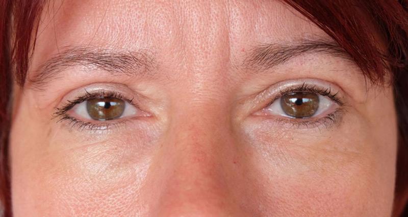 Véraláfutás a szem alatt