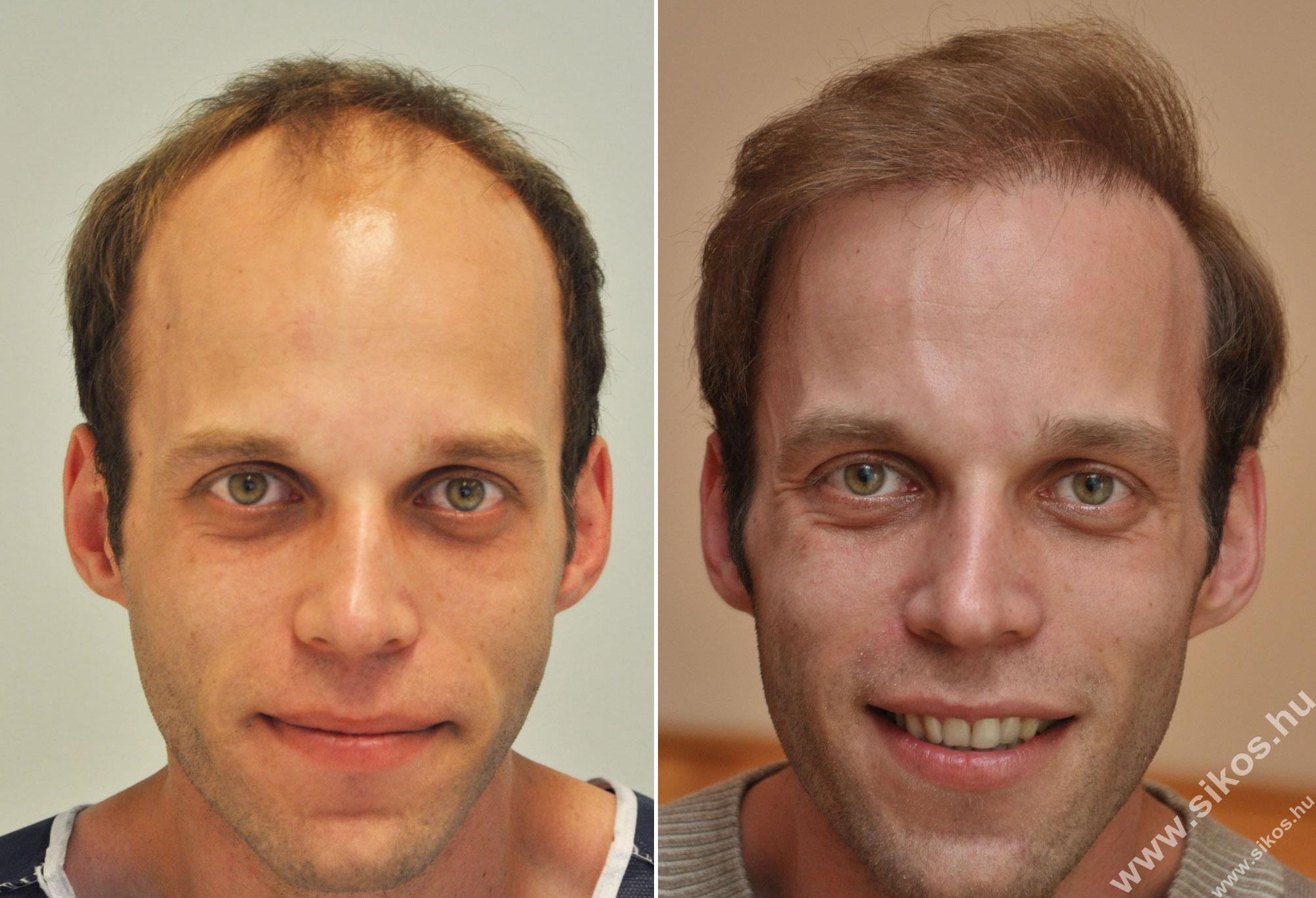 FUE hair transplant Sikos Clinic
