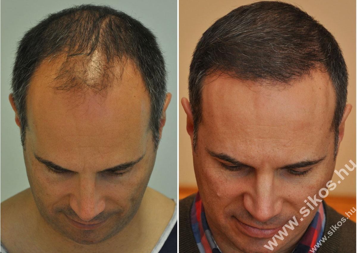 Haartransplantation, Eigenhaartransplantation FUE