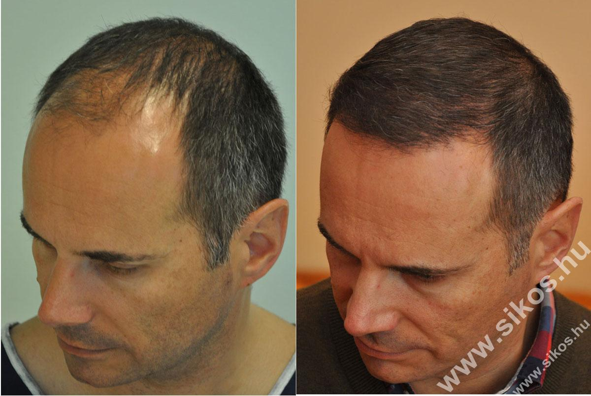 FUE hair transplant 2839 graft 7 months
