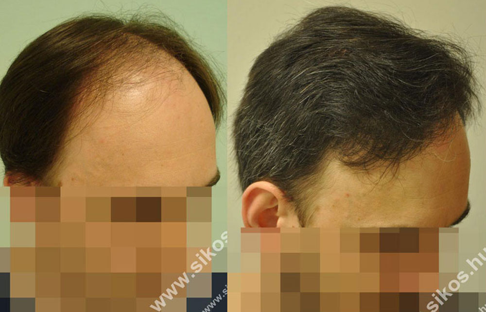 Hair transplant, FUE hair transplantation, hair implant